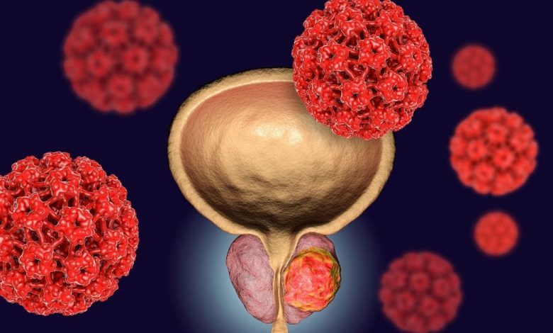 america-at-the-forefront-of-prostate-cancer-research