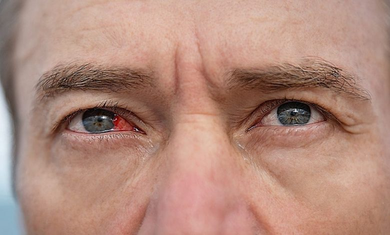 recommendations-to-prevent-an-eye-infection