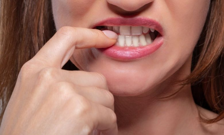 this-is-how-it-affects-the-health-of-our-teeth-moderating-nails