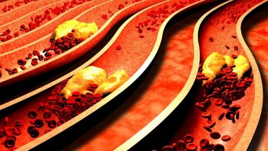 Photo of Answer to all the 5 most frequent doubts about a cholesterol