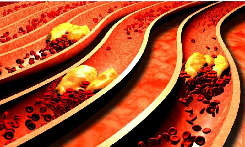 answer-to-all-the-5-most-frequent-doubts-about-a-cholesterol
