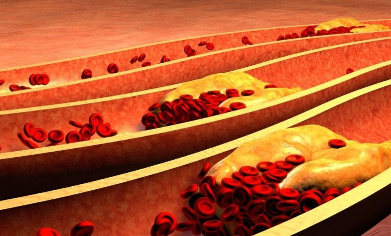 they-discover-the-role-that-cholesterol-plays-in-a-type-on-liver-cancer