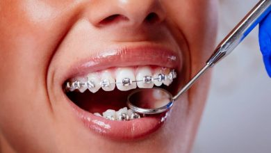 Photo of Oral hygiene recommendations for people with braces
