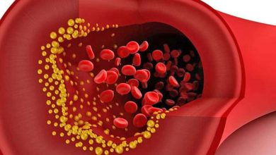 Photo of What factors can cause high blood cholesterol